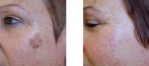 Antes y después del tratamiento antimanchas Accurett